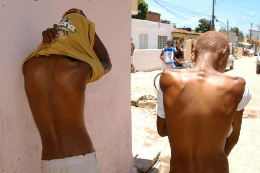 Meninos foram agredidos com cacetetes pelos PMs. Foto: Júlio Jacobina/DP/D.A Press